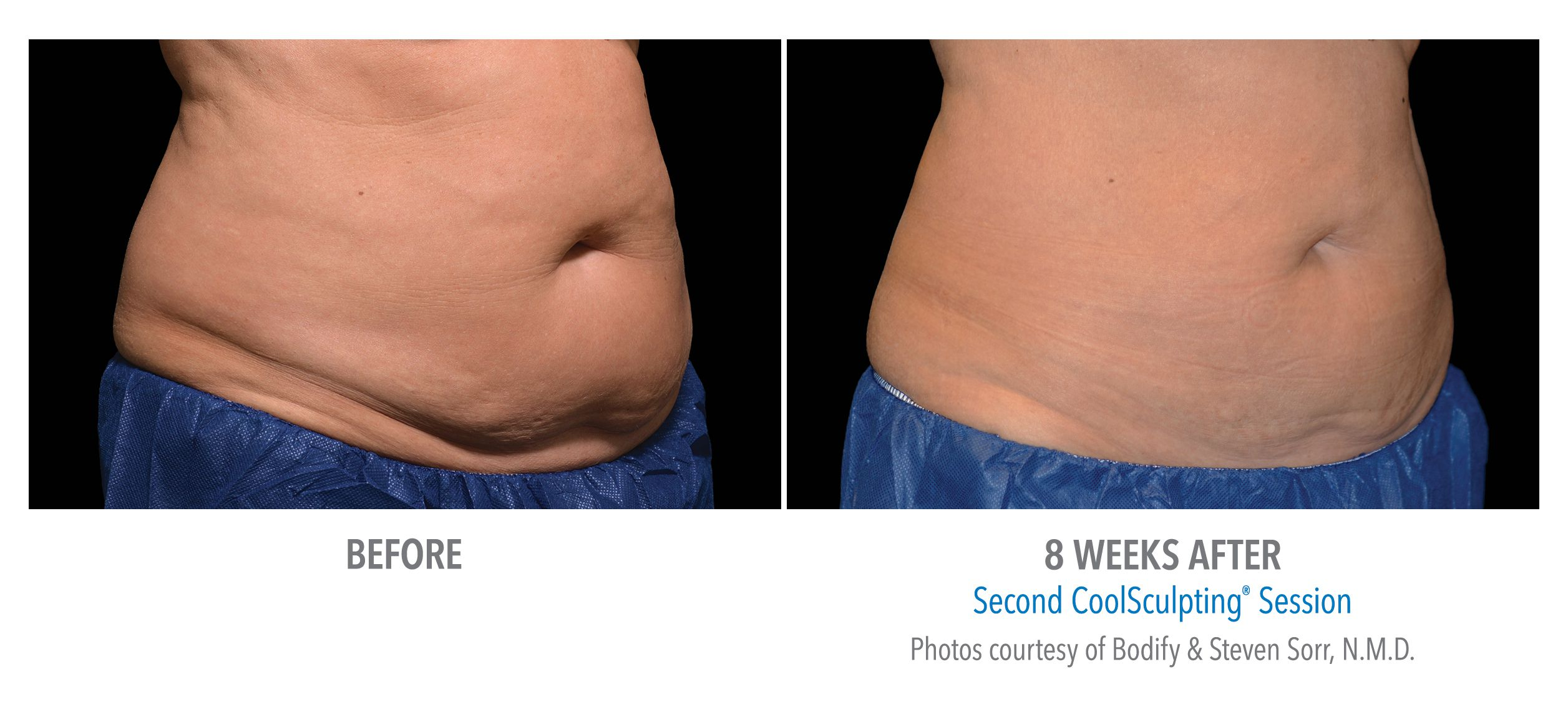 CoolSculpting Result